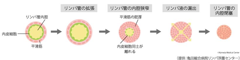 リンパ浮腫の進行とリンパ管の変性